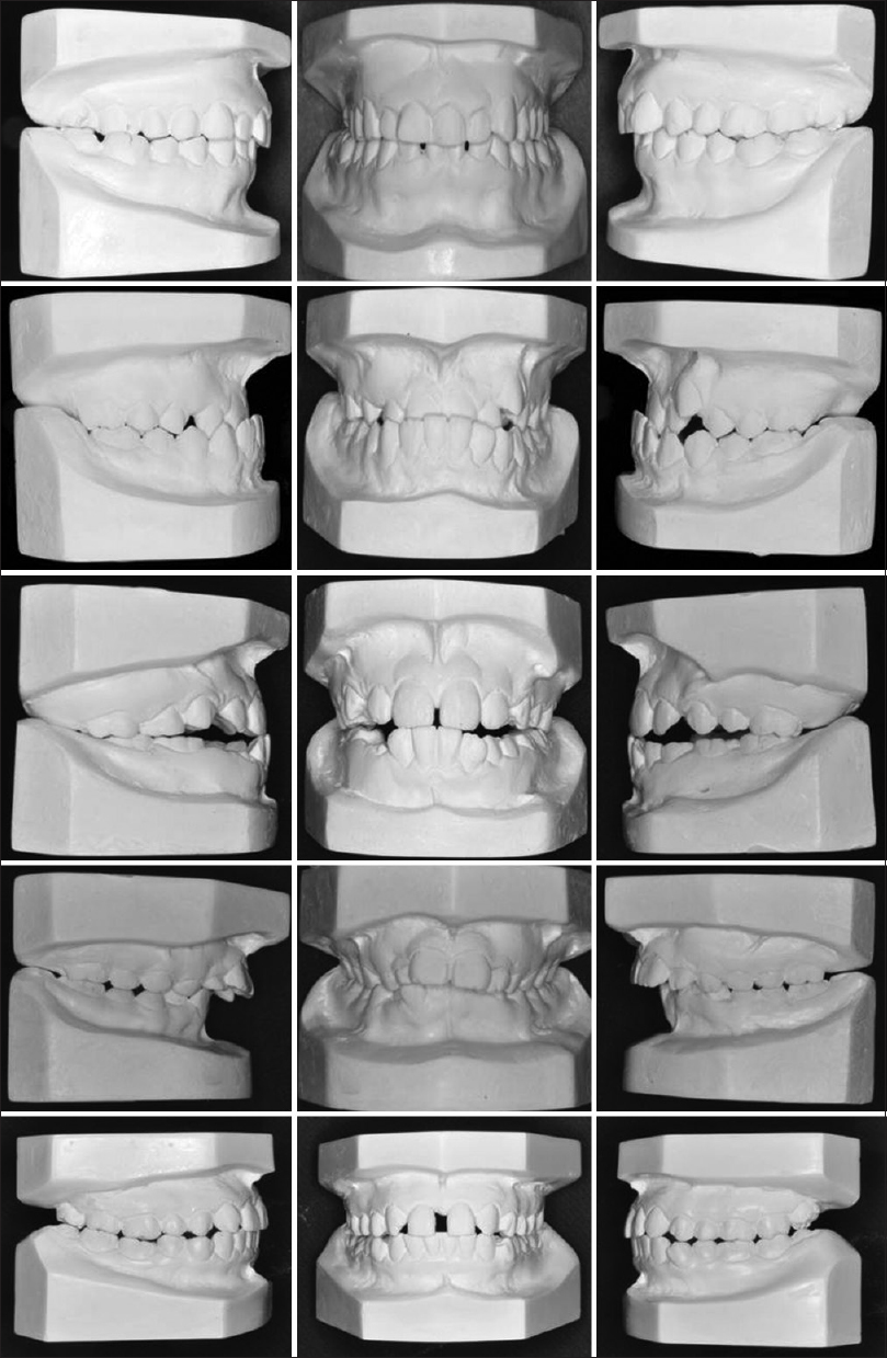 Figure 1: Side right, front, and left side photographs of dental model of five patients. Case 1: Class II malocclusion, increased overjet. Unilateral crossbite, upper midline deviated, anterior diastema. Case 2: Class III malocclusion, reversed overjet, increased overbite, unilateral crossbite, midline deviated. Case 3: Class III malocclusion, negative overjet, zero overbite, and central diastema. Case 4: Class II malocclusion, division 1, increased overjet and overbite and upper arch collapse. Case 5: Class II malocclusion, decreased overjet and overbite, edge-to-edge bite, 12 missing and central diastema